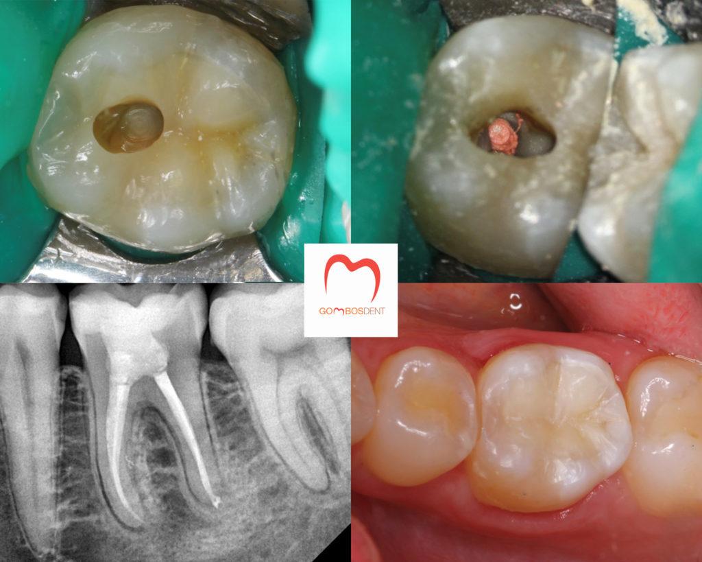 ízületi fájdalom a fogkezelés után ízületi fájdalom akklimatizációja