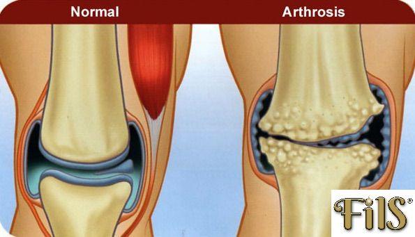 porcjavító anyagok hogyan lehet érzésteleníteni a térd artrózisának fájdalmait