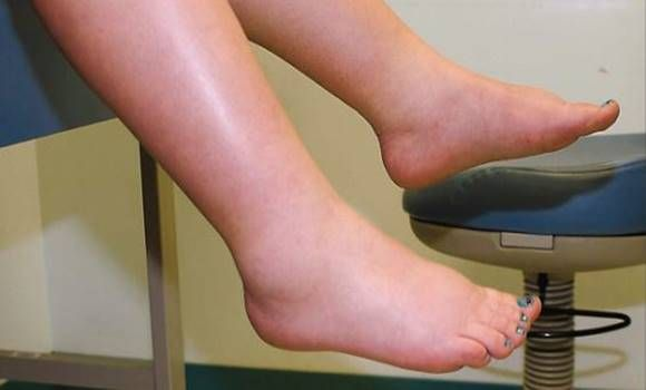 gyógyszerek a gerinc kenőcsének osteochondrozisához hogyan kezeljük az ízületi gyulladást és a reumát
