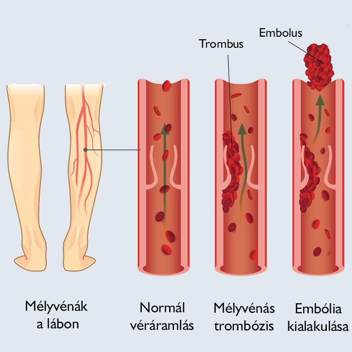 hogyan lehet kezelni a térd artritiszét