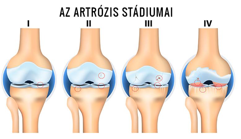 korai stádiumú artrózis kezelés ízületi gyulladás a térdben