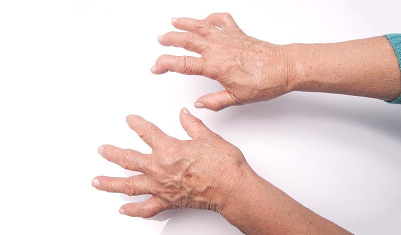 hogyan lehet gyorsan enyhíteni az ujjak ízületeit