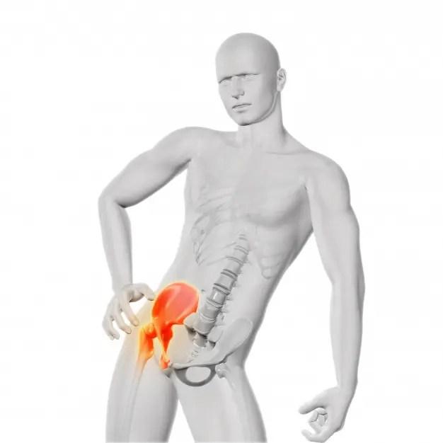 csípő sérülés-sprain ízületi fájdalom a lábak duzzanata