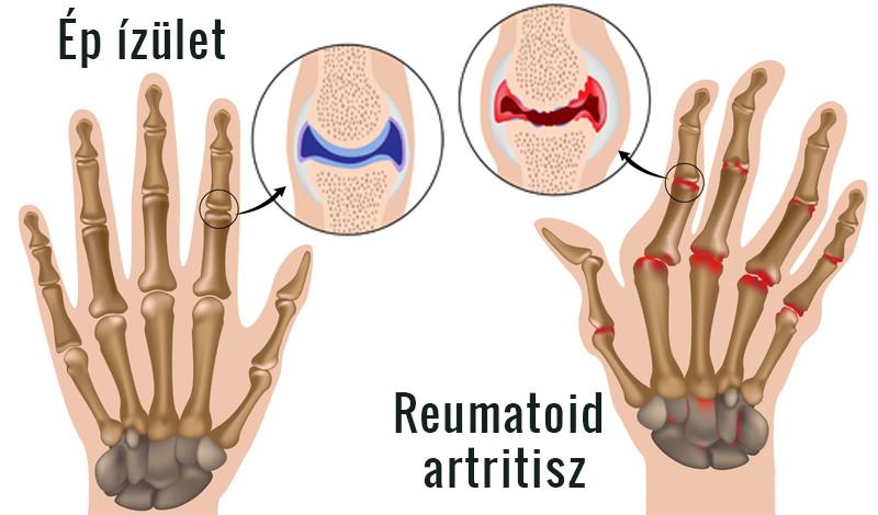 hogyan lehet kezelni az ujjak ízületeinek gyulladását ízületi fájdalom éjjel és reggel