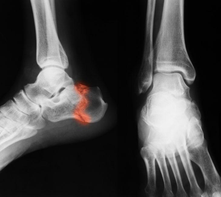 fáj a sarok ízülete kenőcs felmelegítése osteochondrozis esetén