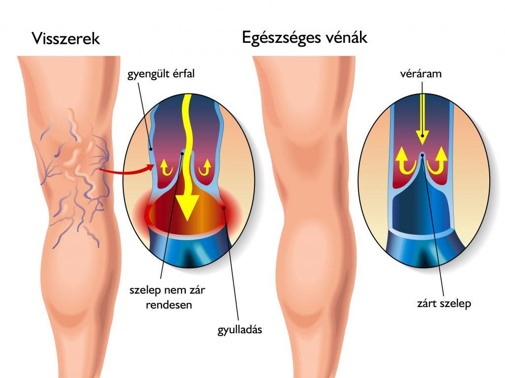 a vénák ízületi gyulladásának kezelése térdkárosodás sport