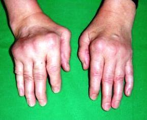 medence kötőszöveti betegségek