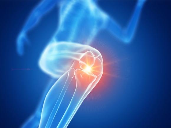 PharmaOnline - Mennyit ér a szteroid-injekció a térd osteoarthritise esetén?