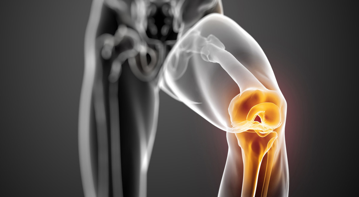 A maxillofaciális ízületi tünetek és a kezelések arthritisében