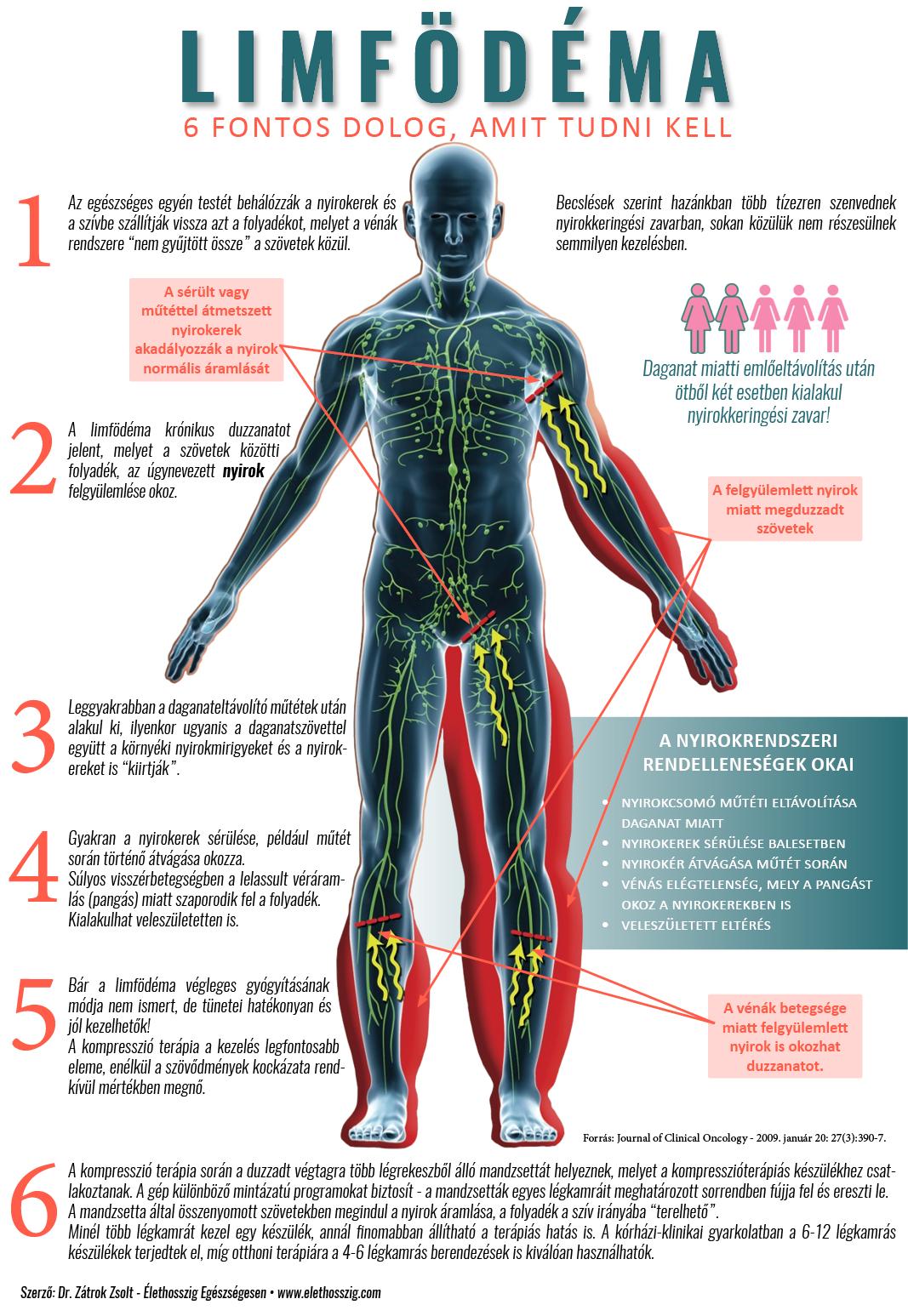 a vénák ízületi gyulladásának kezelése intraartikuláris készítmények artrózis kezelésére