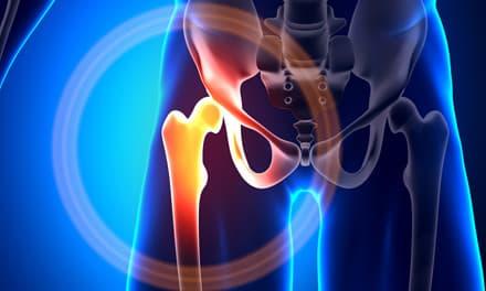 ízületi fájdalom a jobb kéz kezelésében menopauza fájdalma a csípőízületekben