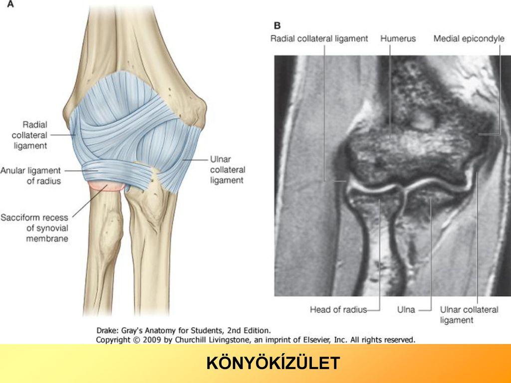 a könyökízület kenőcsének bursitisz az ízület deformációja deformáló artrózissal jár