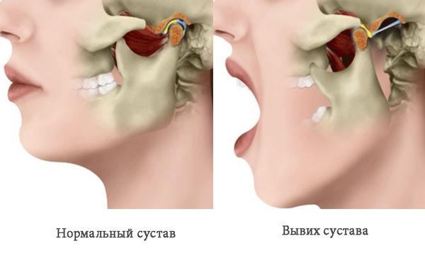 amikor kinyitja a száját, az ízület fáj fájó kattanási ízületek