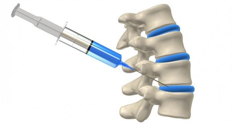 chondoprotective kenőcsök az oszteokondrozisra akupunktúra közös kezelés