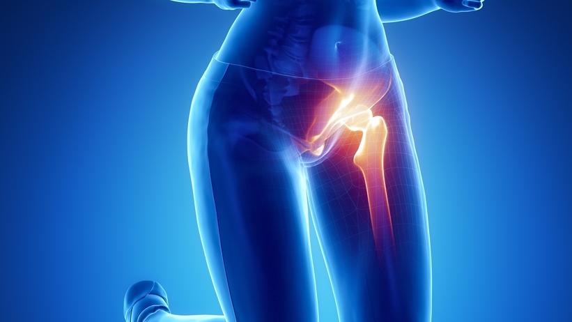 csípőfájdalom coxarthrosis gyógyszere