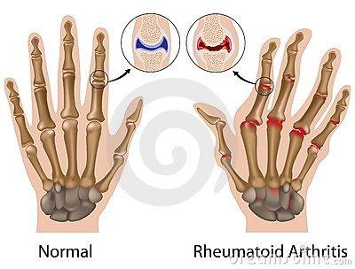 ujj izületi gyulladás kezelése csigolyák közötti trauma