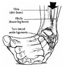 💉 Laterális Collateral Ligament Sprain and Injury - Az orvosát