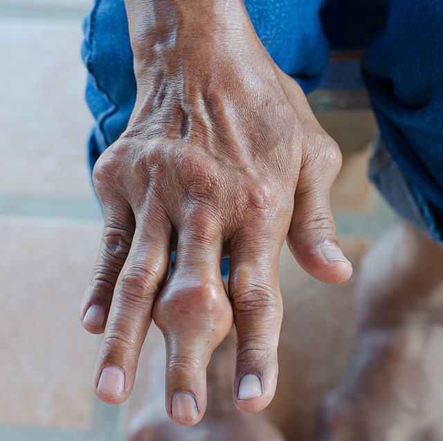 a kéz ízületi gyulladása, mint a kezelés