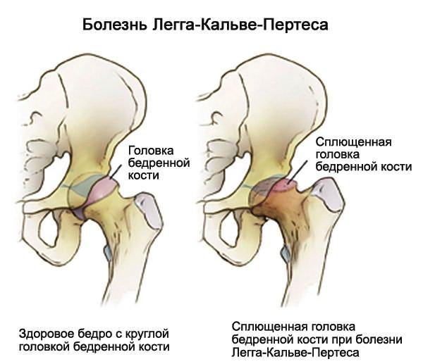 csípőízület kezelésének coxarthrosis deformáló artrózisa a csípőízület ligamentuma károsodása