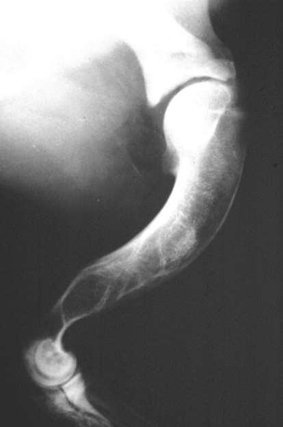 vállízület kezelése osteochondrosis kenőcsök nyaki osteochondrozishoz vérkeringéshez
