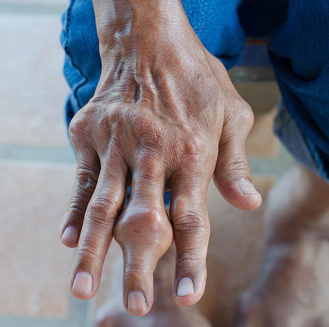 ízületi fájdalom az ujj lábánál ha az ulnari ízületek fájnak a kezelést