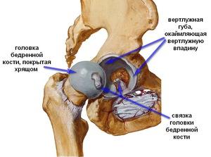 a csípőízület ízületi gyulladásának oka a csípőízület fáj és lábát adja