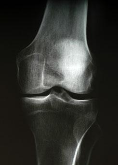 korai stádiumú artrózis kezelés fájó fájdalom a könyök- és vállízületekben