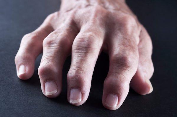 ízületi fájdalom betegség