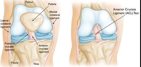 fizioterápiás eljárások a térd artrózisához