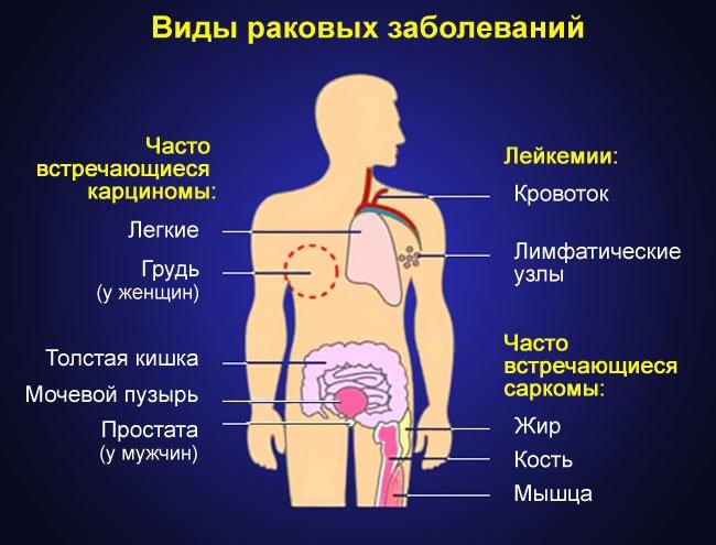 térdízületi kezelés ízületi gyulladás tünetei