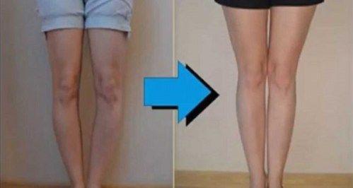 A boka gyulladása: tünetek (fotó), okok és a boka kezelése - Homorú-domború lencse