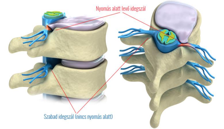 ízületeket kezelő ortopéd az ízületek limfómában szenvednek