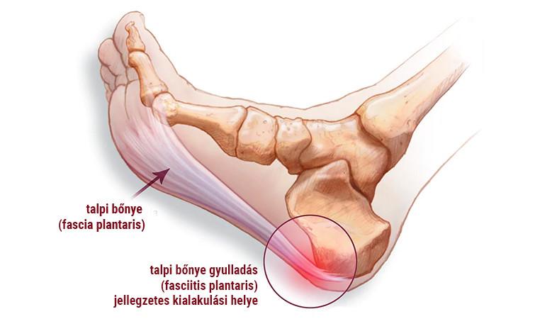 csuklószalag gyulladás tünetei