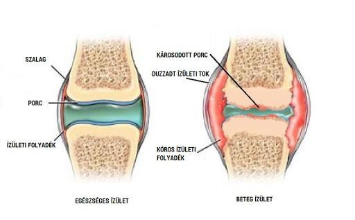 a csontok és az ízületek megsérülnek a mérgezés során