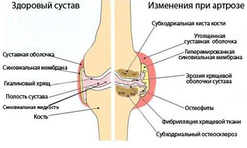 Tudok futtatni az arthrosist? - Masszázs July