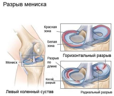 Térdfájdalom a belső oldalon   Harmónia Centrum Blog
