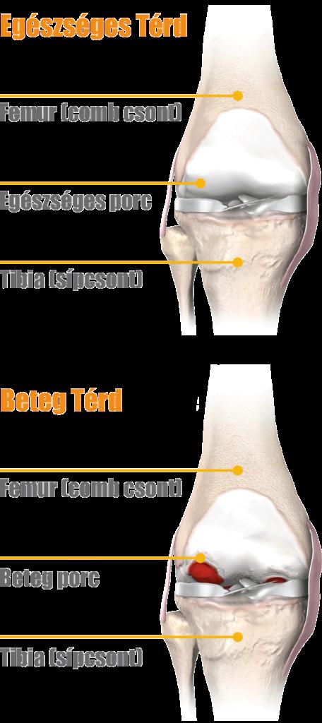 a térdízület kezelésének artrózisának mértéke