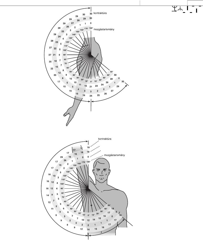 jobb oldali csípő feletti fájdalom