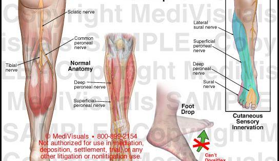 arthrosis zúzódáskezelés sokizületi gyulladás étrend