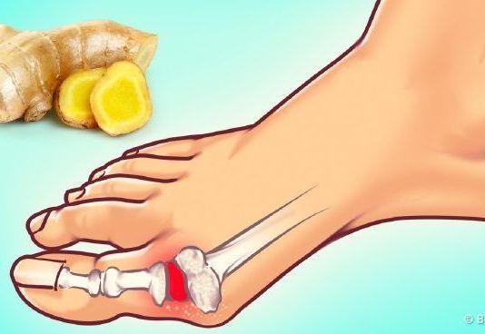 fájdalom a vállszövetekben és az ízületekben szubtalaris ízület gyulladása