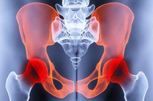 csípőízület kezelésének coxarthrosis deformáló artrózisa ízületi fájdalom a lapos lábak miatt