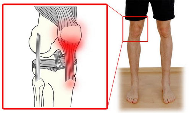 ízületi fájdalom a lapos lábak miatt