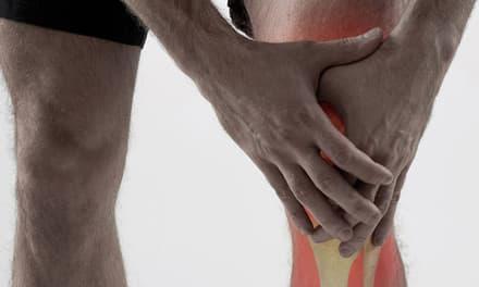 Befagyott váll (vállmerevség), fájdalmas váll szindróma