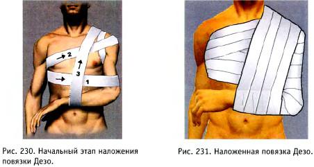 fájdalom a derék-metatarsális ízületekben