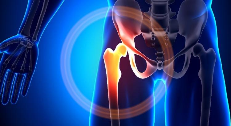görcsös csípőízület fájdalma