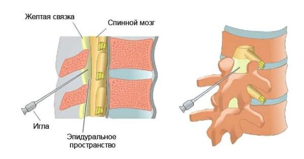 A legjobb kenőcsök osteochondrosisra - Rehabilitáció