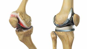 kilátás a térdízület artrózis)