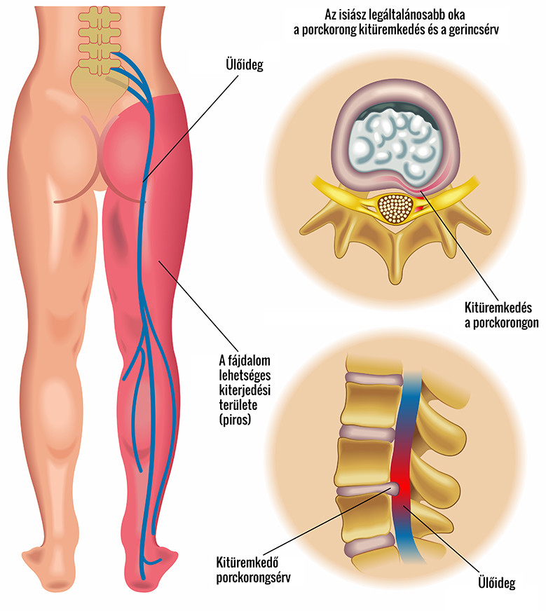A csípőízület és a csípőfájdalom lehetséges okai