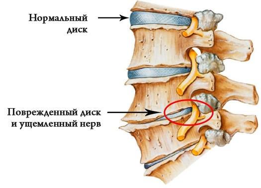 szörnyű fájdalom a csípőízületekben