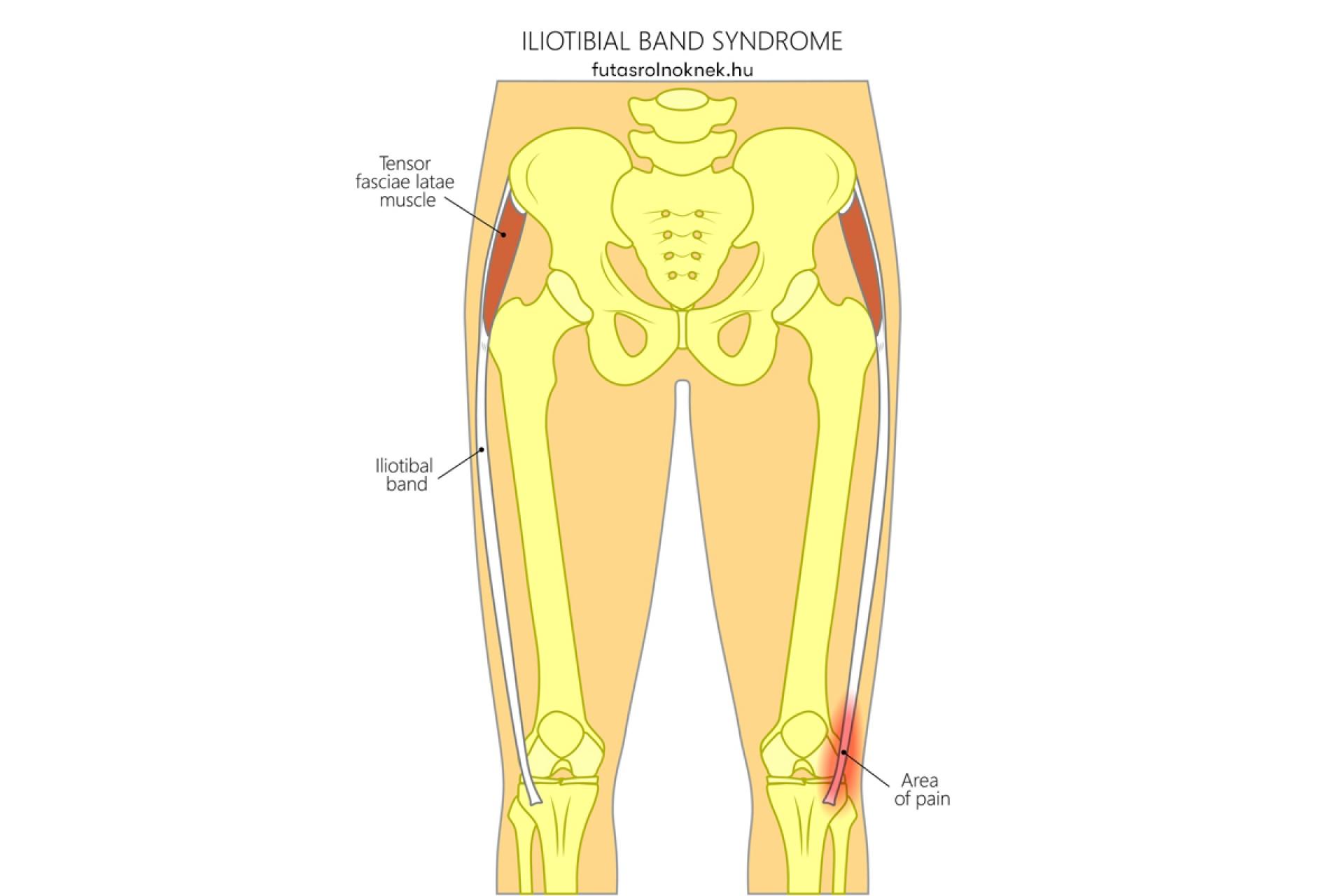 ízületi fájdalom a comb külső oldalán kenőcsök a vállízület osteochondrosisához